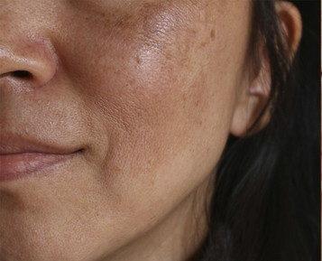 肌トラブルを抱えている女性
